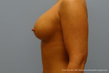 Philadelphia Breast Augmentation 8774 -  After Image 5