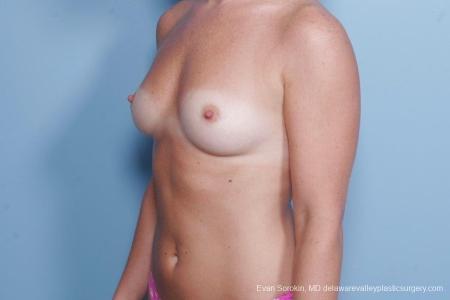 Philadelphia Breast Augmentation 8785 - Before Image 3