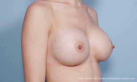 Philadelphia Breast Augmentation 9170 -  After Image 2
