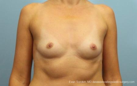 Philadelphia Breast Augmentation 8764 - Before Image 1