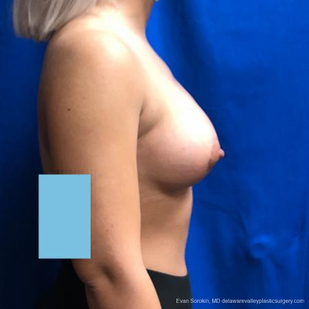 Breast Lift And Augmentation: Patient 43 - After Image 3