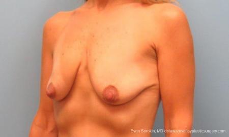 Philadelphia Breast Lift and Augmentation 9485 - Before Image 4