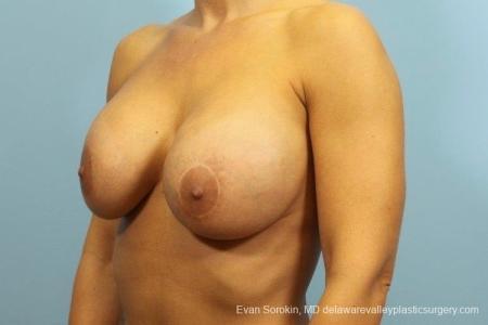 Philadelphia Breast Augmentation 8709 - Before Image 3