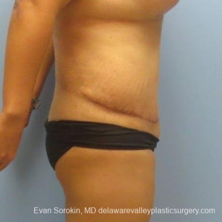 Philadelphia Abdominoplasty 8678 -  After Image 5