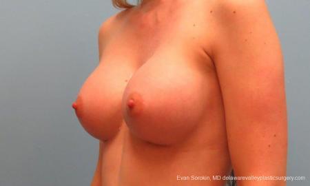 Philadelphia Breast Augmentation 9381 -  After Image 4