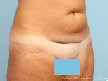 Philadelphia Abdominoplasty 9464 - Before Image 2