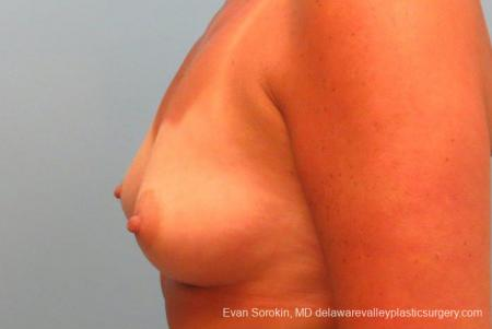 Philadelphia Breast Augmentation 9406 - Before and After Image 5