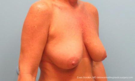 Philadelphia Breast Lift and Augmentation 9398 - Before Image 3