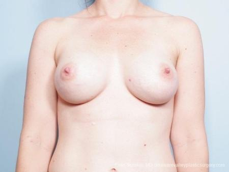 Philadelphia Breast Lift and Augmentation 8686 -  After Image 1