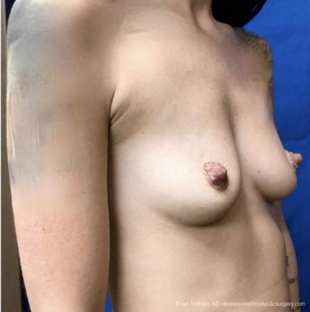 Breast Augmentation: Patient 161 - Before Image 2
