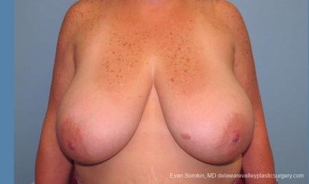 Philadelphia Breast Reduction 10118 - Before Image