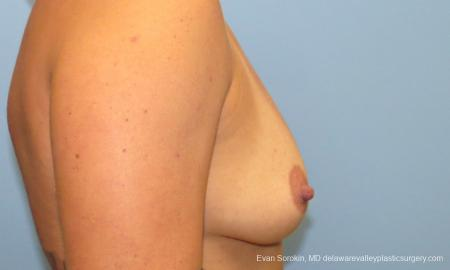 Philadelphia Breast Augmentation 9388 - Before Image 3