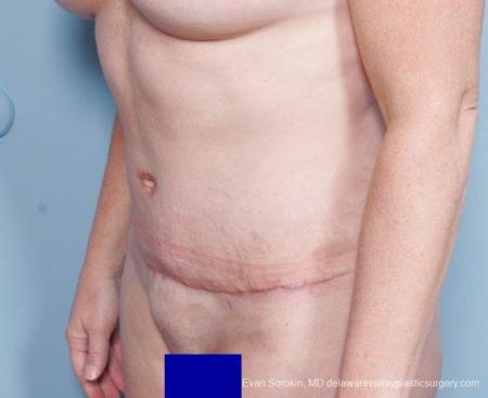 Philadelphia Abdominoplasty 9315 -  After Image 2