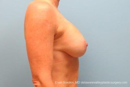Philadelphia Breast Lift and Augmentation 8690 -  After Image 4