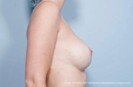 Philadelphia Breast Augmentation 8776 -  After Image 4