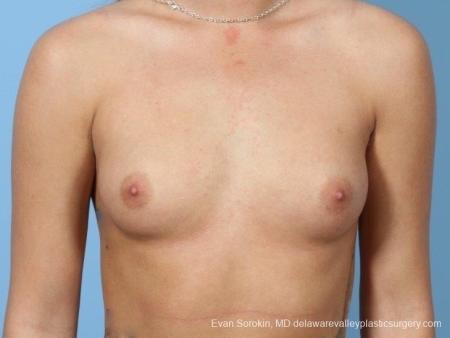 Philadelphia Breast Augmentation 8657 - Before Image 1