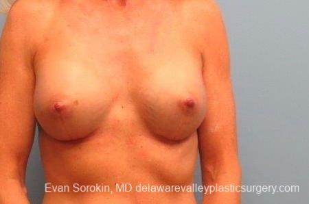 Philadelphia Breast Augmentation 8770 -  After Image 1