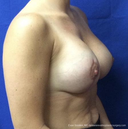 Breast Lift And Augmentation: Patient 3 - After Image 2