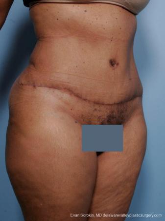 Philadelphia Abdominoplasty 9461 -  After Image 2