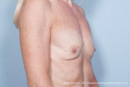 Philadelphia Breast Augmentation 9415 - Before Image 2