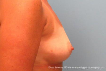 Philadelphia Breast Augmentation 9406 - Before Image 3