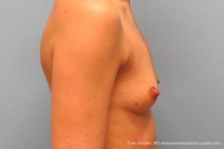 Philadelphia Breast Augmentation 8763 - Before Image 4