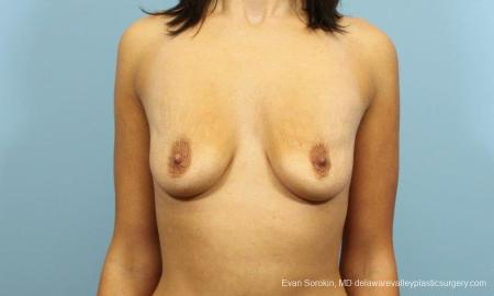 Philadelphia Breast Augmentation 9205 - Before Image 1