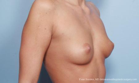 Philadelphia Breast Augmentation 9177 - Before Image 4