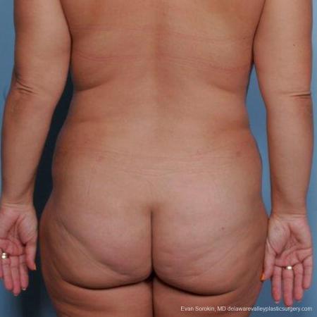 Philadelphia Liposuction 9481 -  After Image 4