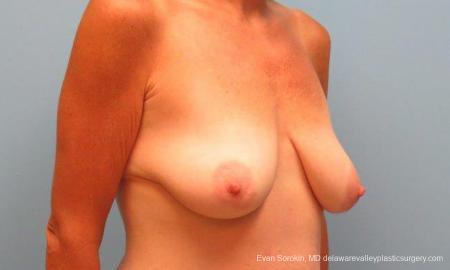 Philadelphia Breast Lift and Augmentation 9486 - Before Image 2