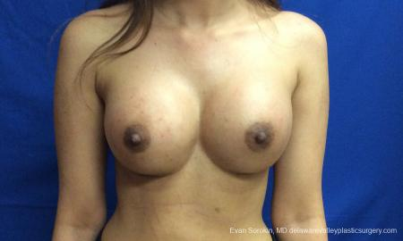 Philadelphia Breast Augmentation 12515 -  After Image 1
