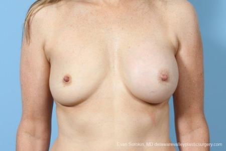Philadelphia Breast Augmentation 8708 - Before Image 1