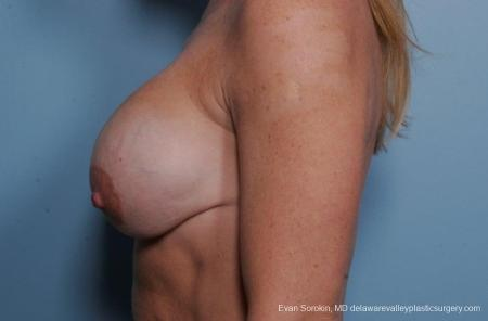 Philadelphia Breast Lift and Augmentation 8690 - Before and After Image 5