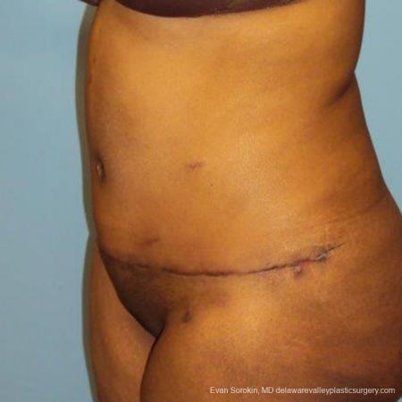 Philadelphia Abdominoplasty 9472 -  After Image 4