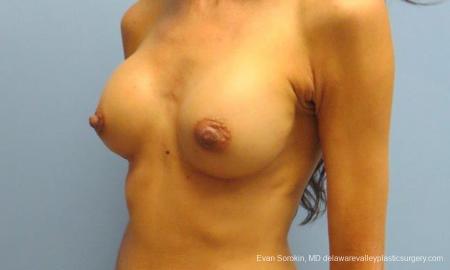 Philadelphia Breast Augmentation 9424 -  After Image 4