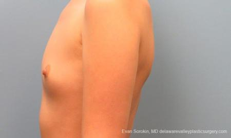 Philadelphia Breast Augmentation 10113 - Before and After Image 5