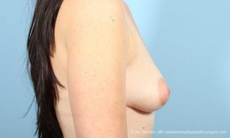 Philadelphia Breast Augmentation 9346 - Before Image 3