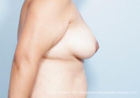 Philadelphia Breast Lift and Augmentation 8677 - Before and After Image 4