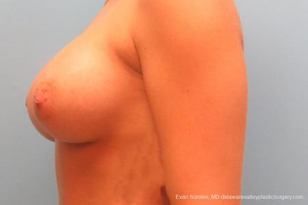 Philadelphia Breast Augmentation 9344 -  After Image 5