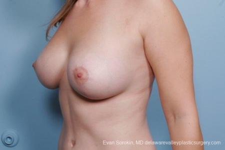 Philadelphia Breast Lift and Augmentation 8680 -  After Image 3