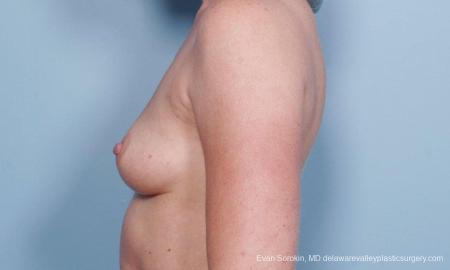 Philadelphia Breast Augmentation 9178 - Before and After Image 5