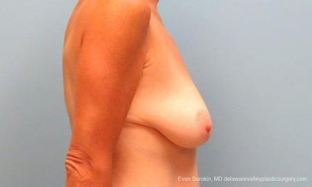 Philadelphia Breast Lift and Augmentation 9486 - Before Image 3
