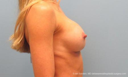 Philadelphia Breast Augmentation 9397 -  After Image 3