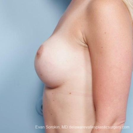 Philadelphia Breast Augmentation 8652 - Before and After Image 5