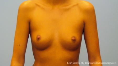 Philadelphia Breast Augmentation 9292 - Before Image 1