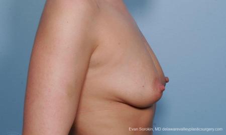 Philadelphia Breast Augmentation 9372 - Before Image 3