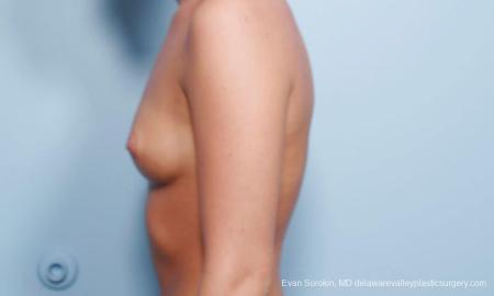 Philadelphia Breast Augmentation 9304 - Before and After Image 5