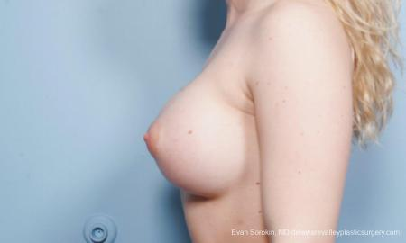 Breast Augmentation: Patient 129 - After Image 5