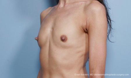 Philadelphia Breast Augmentation 9424 - Before Image 4