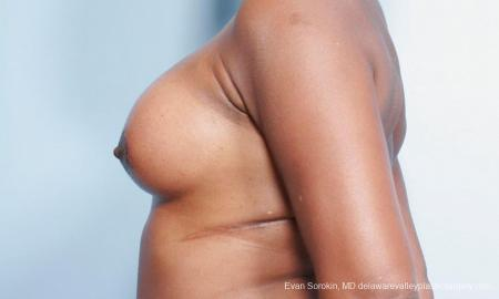 Philadelphia Breast Lift and Augmentation 9427 -  After Image 5